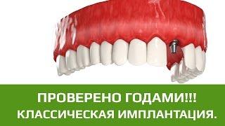 Двухэтапная имплантация зубов с отсроченной нагрузкой. Методика проведения двухэтапной имплантации(Классическая имплантация или двухэтапная (двухфазная) имплантация с отсроченной нагрузкой проводится..., 2015-06-30T10:55:43.000Z)