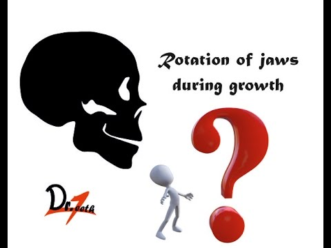 Rotation of jaws during growth