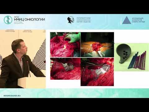 Возможности хирургического лечения опухолей тазового кольца