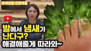 발냄새없애는법 내 발에서는 왜 냄새가 나지?