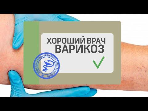 Хороший врач - лечение ВАРИКОЗА | профилактика | варикозная | операция | народное | варикоза | хороший | лечение | канал_360 | варикоз | болезнь
