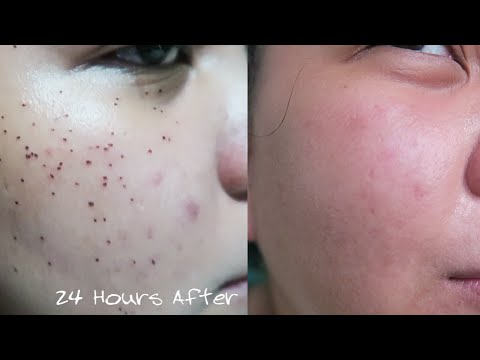 Warts Removal Recovery Diary - August 1, 2016 | Mommy Roxi