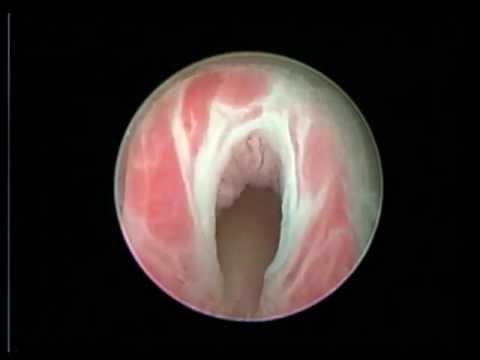 Дивертикул мочевого пузыря: что это такое, и как лечить?
