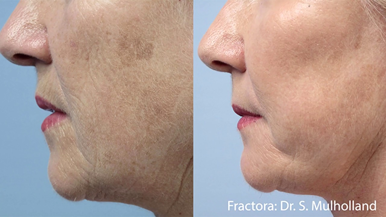 Skin Rejuvenation | ESANA Plastic Surgery Center and MedSpa