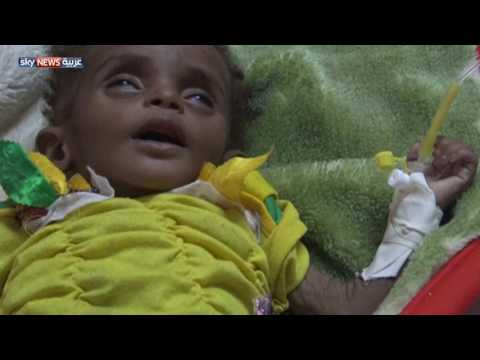 الأمم المتحدة تحذر من انتشار الكوليرا في اليمن  - نشر قبل 6 ساعة