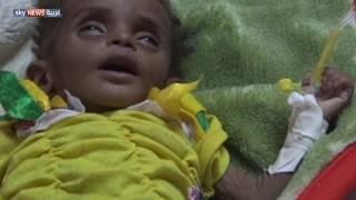الأمم المتحدة تحذر من انتشار الكوليرا في اليمن