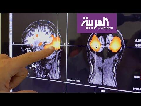 دراسة: آلية عمل الدماغ تختلف بين محبي السهر ومن يستيقظ باكرا  - نشر قبل 3 ساعة