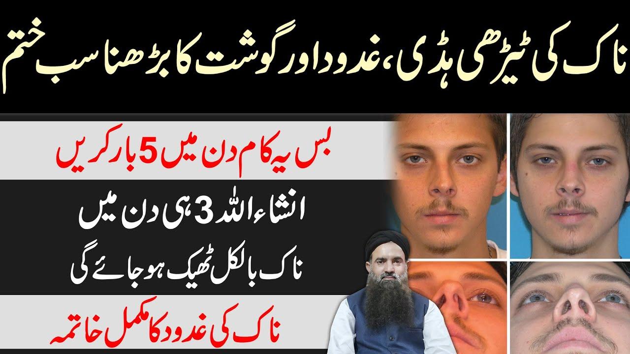 Download Naak Ki Tedhi Haddi Ka ilaj | Naak Ki Haddi | Naak Ki Gadood | Nose Ki Chaiyan ilaj Dr Sharafat Ali