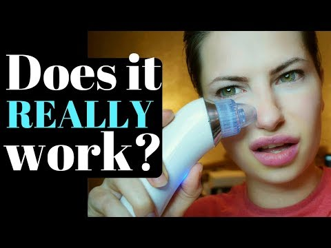 💎 Pore Vacuum Cleaner 💎 Xpreen Black Heads Remover Test & Review 💎