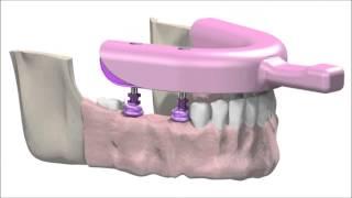 εμφυτευματα δοντιων sic προσθετική διαδικασια dental implants step 2