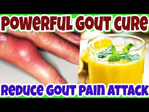 Remove The Gout Forever Naturally This Is Very Powerful Remedy Gout Natural Treatment Wi