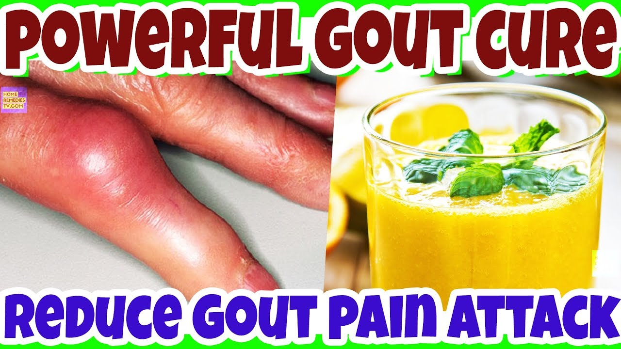 gout cause kidney disease what are the foods containing uric acid high uric acid in blood work
