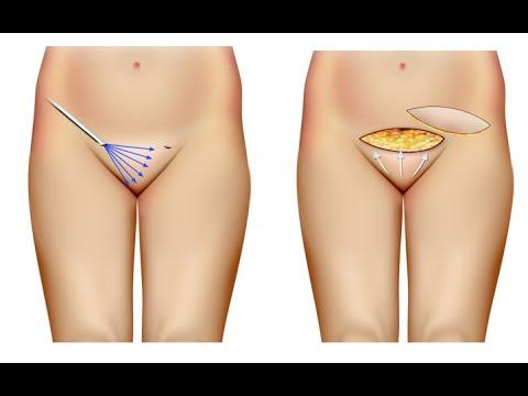Monte de Venus, Cirurgia Intima. Dr André Colaneri explica - YouTube