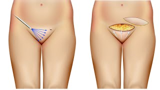 Monte de Venus, Cirurgia Intima. Dr André Colaneri explica