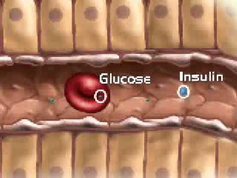Diabetes Mellitus TYPE 1,2,INSULIN,GLUCOSE