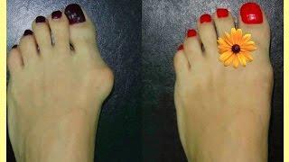 что пить при подагре. на пальце ноги растет косточка