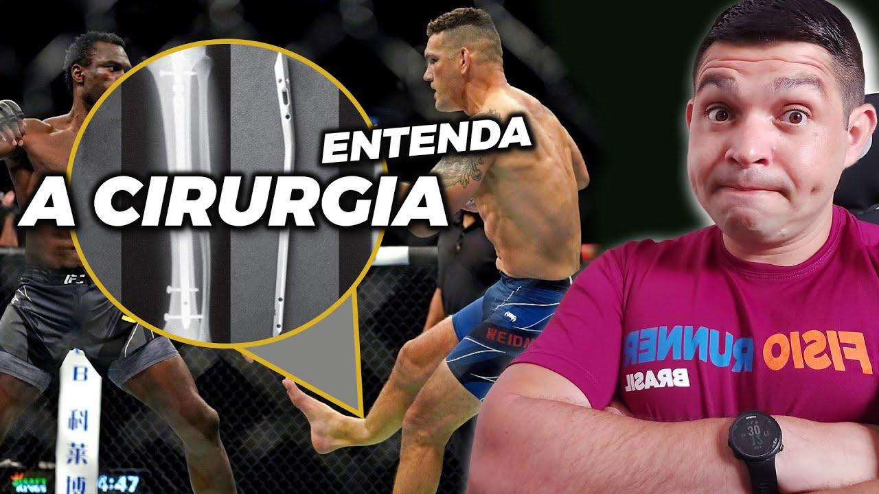 Chris weidman quebra perna no UFC 261 Veja como foi a cirurgia