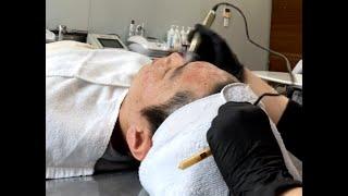 피부과 관리 MTS 프로그램 / 여드름 자국, 흉터 관…
