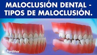Maloclusión - Tipos de maloclusiones dentales ©