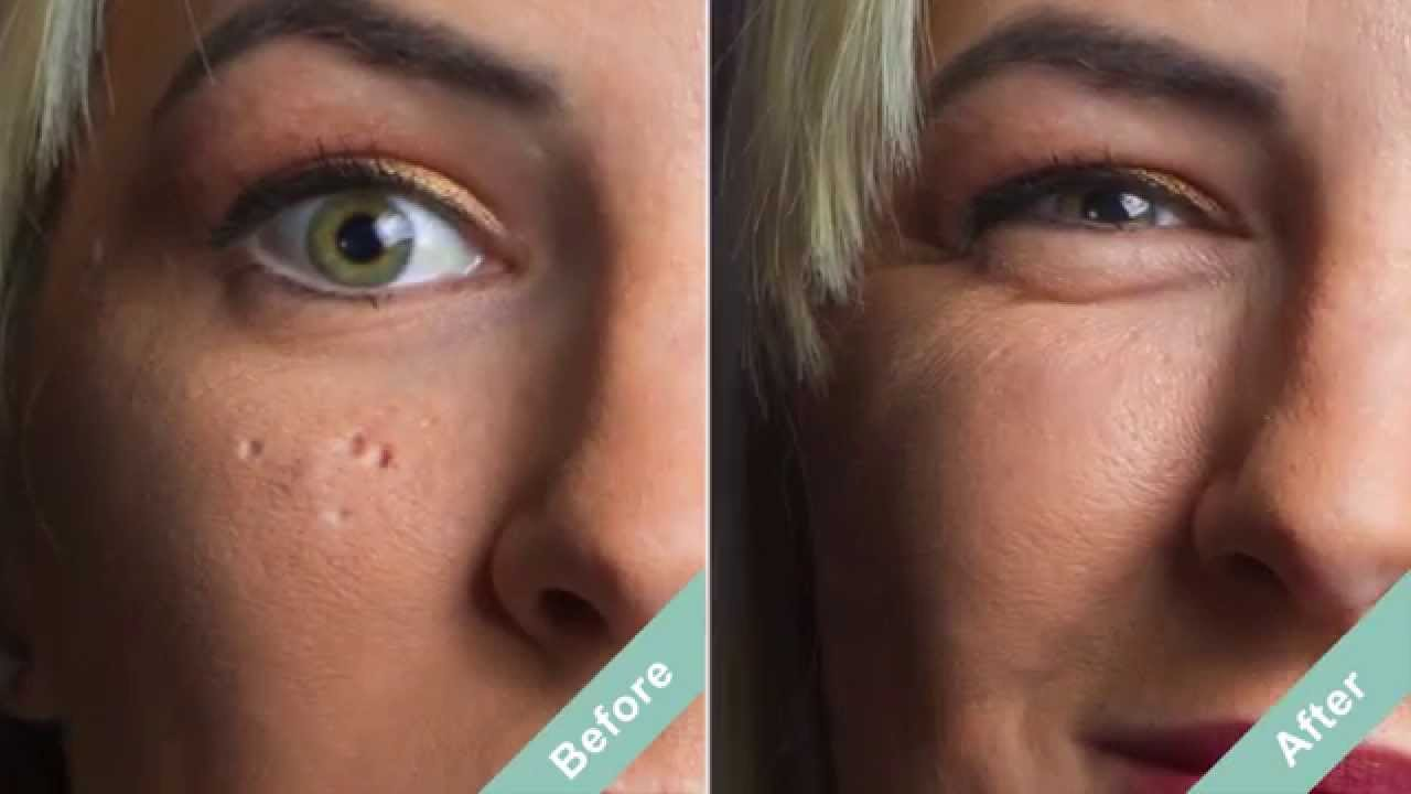 How To Cover Acne Scars With A Hollywood Secret Youtube