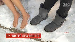 Жителька Чернігова відмовилася від взуття та теплого одягу через проблеми зі здоров'ям