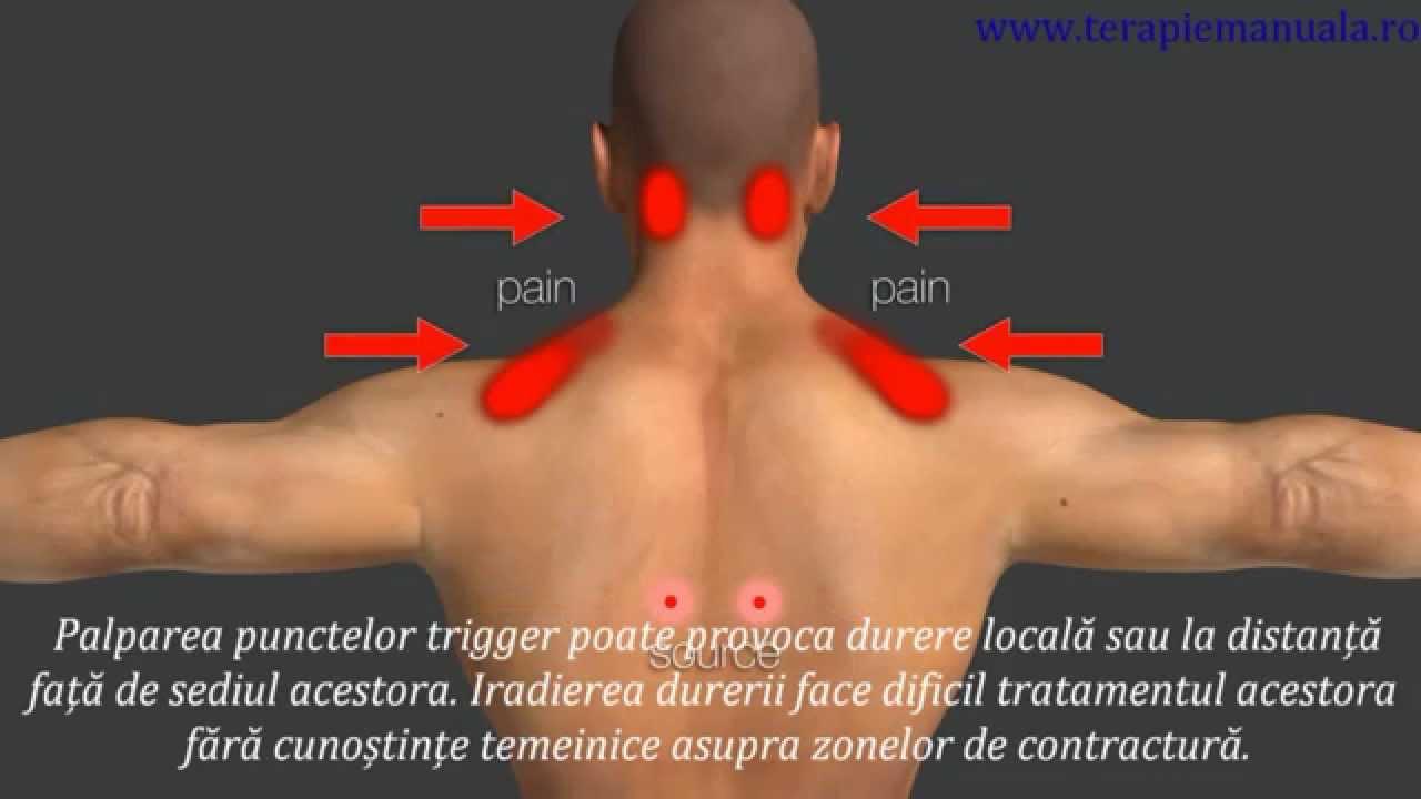 dureri de relief în varicoză)