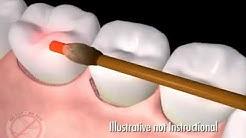 Laser dental treatment of gum disease dentists and dental care sydney castle hill  Call 02 9659 1200