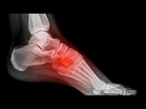 What Are The Top 3 Types of Foot Pain?
