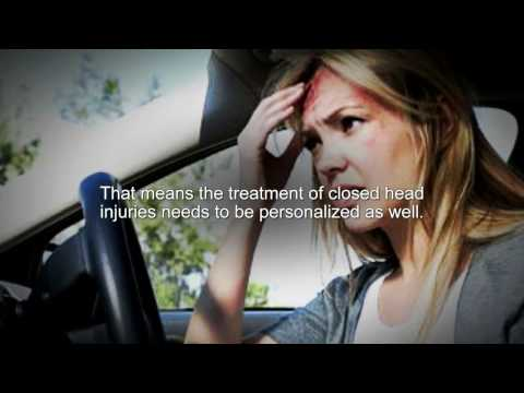 Michigan Closed Head Injury Attorney