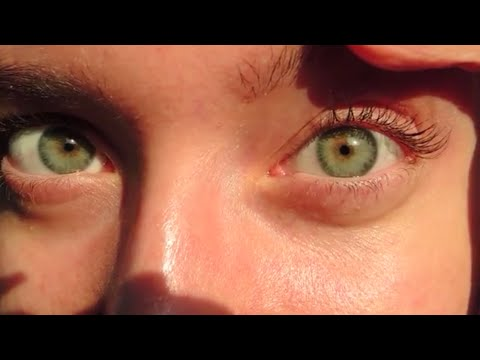Close Up Video Iridology View Of My Eyes + Fed Up Documentary