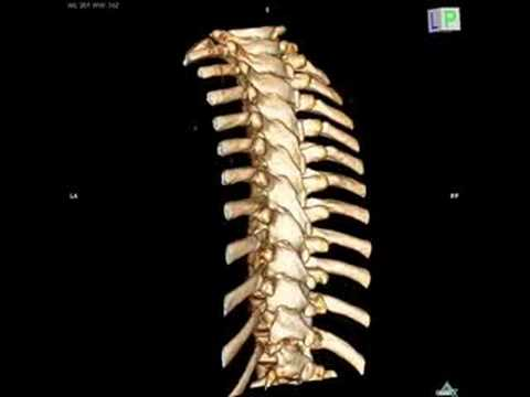 how to read a ct scan lumbar spine