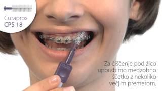 Уход за брекетами, стоматология Простосказка