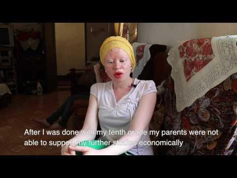 Miss Albino Tanzania 2015