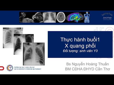Thực hành buổi 1 - X quang phổi
