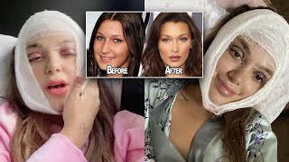I HAD MULTIPLE PROCEDURES DONE. admitting to all my plastic surgery & showing you my experience.