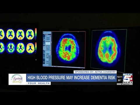 High Bloodstream Pressure inside your 50s May Set Stage for Dementia