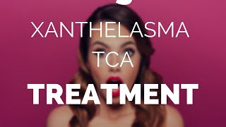 Xanthelasma tca treatment, is there a better choice?