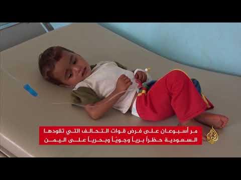 الصحة العالمية تعلن تفشي مرض الدفتيريا باليمن  - نشر قبل 54 دقيقة