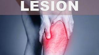 Músculos de la tensos médico para pantorrilla término