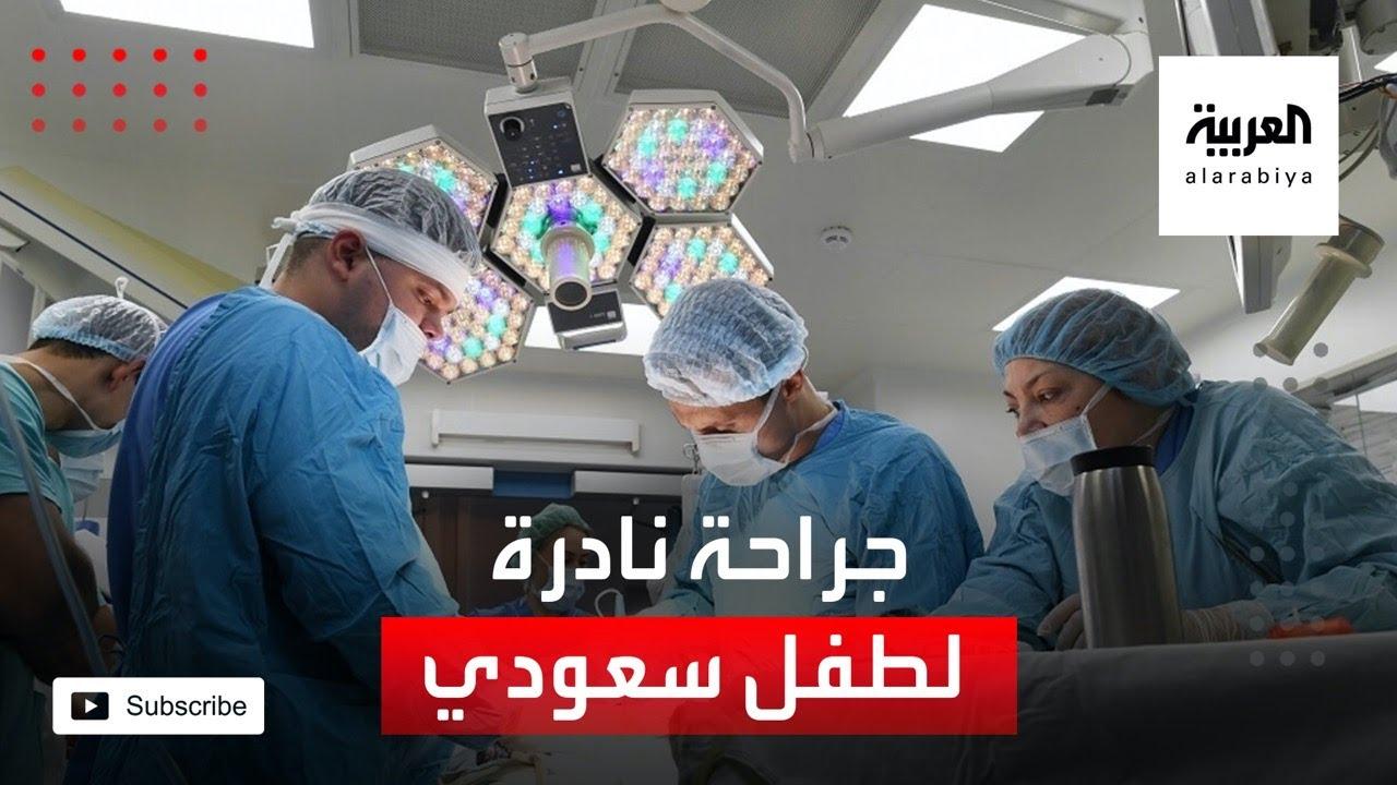 الرياض.. جراحة نادرة تنهي معاناة طفل مع الصرع  - نشر قبل 2 ساعة