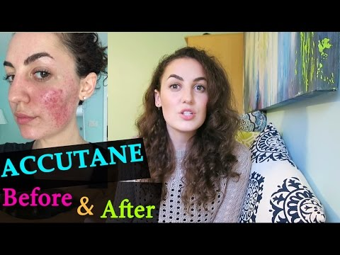 ACNE AFTER ACCUTANE + TIPS TO STAY CLEAR from YouTube · Duration:  11 minutes 8 seconds