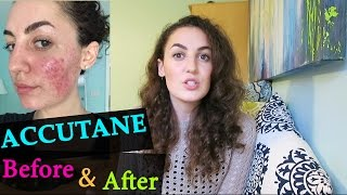 ACCUTANE BEFORE & AFTER // My Accutane Experience