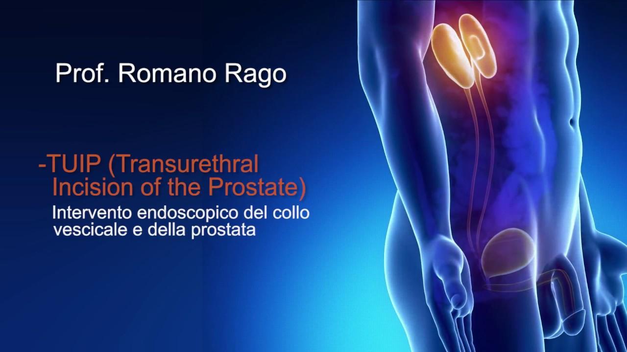 prostata vescicale