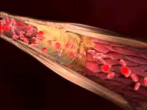 Medical Animation Clotted Blood Vessels Youtube