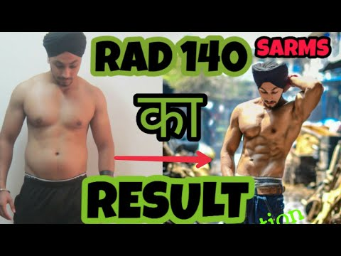 RAD 140  SARMS Cycle  RESULTS And SIDE EFFECTS