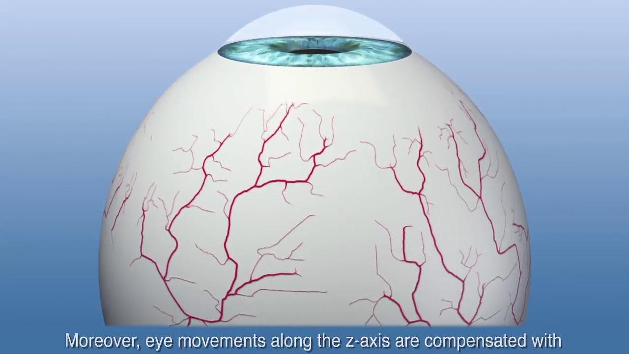 Hyperopia szenilis látás