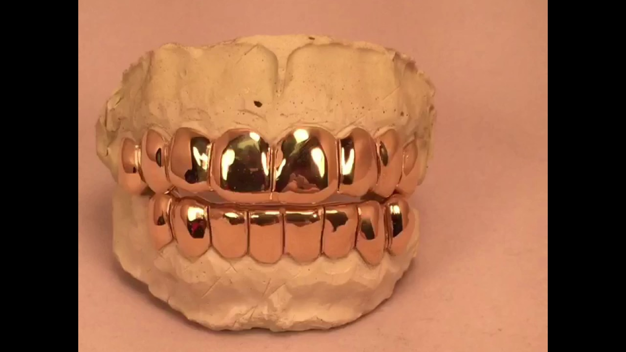 8 on 8 10k Real Gold Grill Permanent Style Kodak Black Style