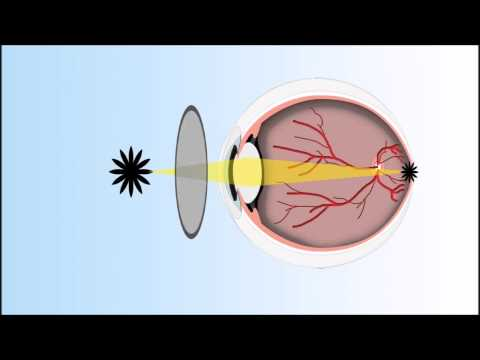 What is Presbyopia?