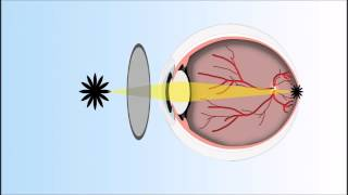 Presbyopia Explained   Annimated Video