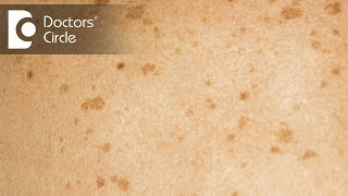 What causes black & brown skin lesions? - Dr. Rasya Dixit